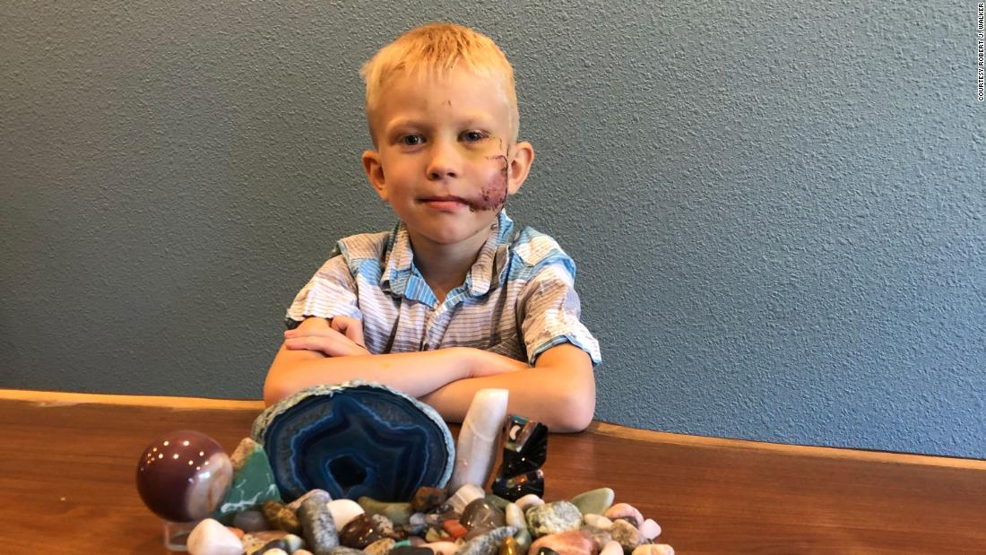 Six-Year-Old Boy Hailed As Hero For Saving Little Sister From Dog Attack